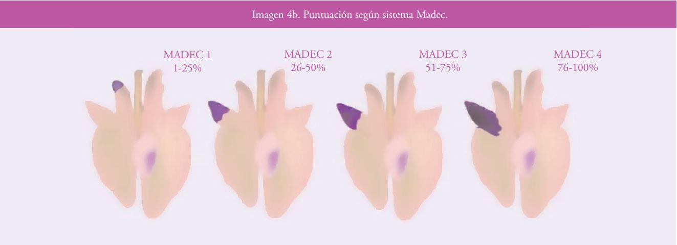 Imagen 4b